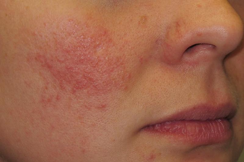 Enfermedades de la piel deben atenderse oportunamente